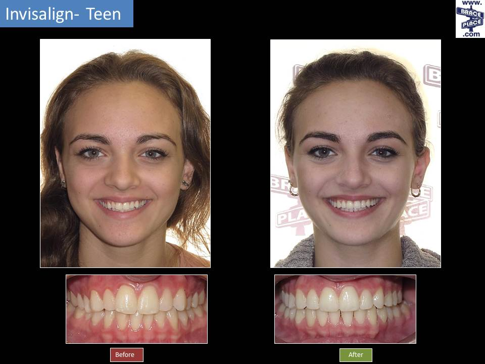 The 6-Minute Rule for Braces Before And After