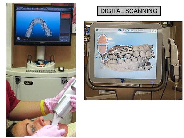 iTero® Digital Impression System - Brace Place Orthodontics